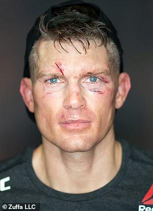 Stephen Thompson lo instó a usar sus movimientos para ganar la batalla.